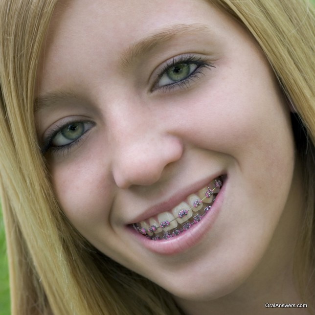 braces_pink_bands_blond_hair_green_eyes