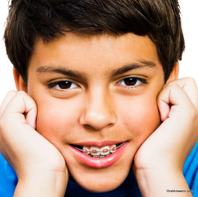 braces_red_colored_bands_teenage_boy