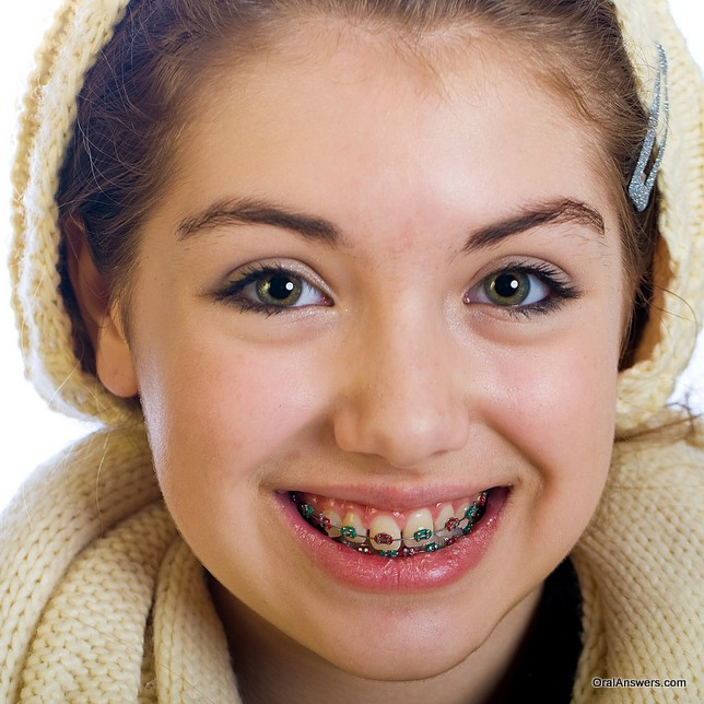 teenage_girl_braces_green_red_hat