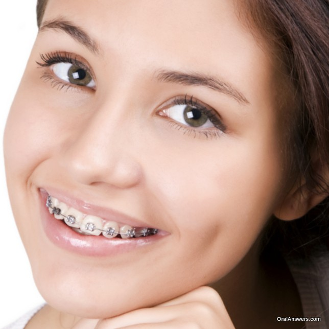 teenage_girl_braces_silver