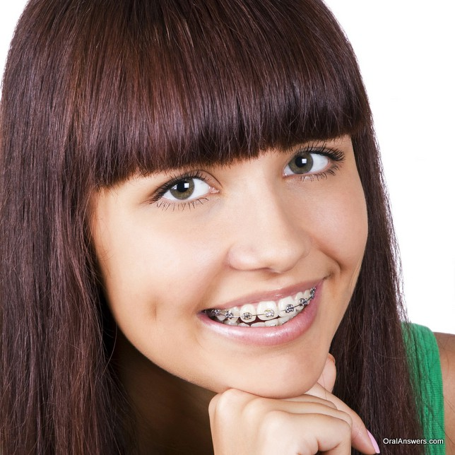 teenage_girl_silver_braces_green_shirt