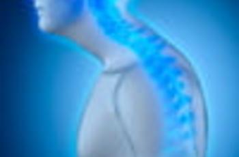 Thiếu - một bệnh khó chịu và xấu xí của cột sống. Nguyên nhân của độ cong của tư thế có thể nằm trong các dấu hiệu di truyền hoặc mua bởi một người trong suốt cuộc đời. Để sửa chữa những thứ hoặc tránh nó, bạn cần thực hiện phức hợp tập thể dục