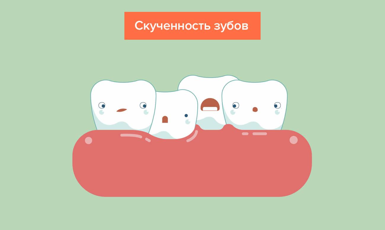 Simptome de dentiție la sugari