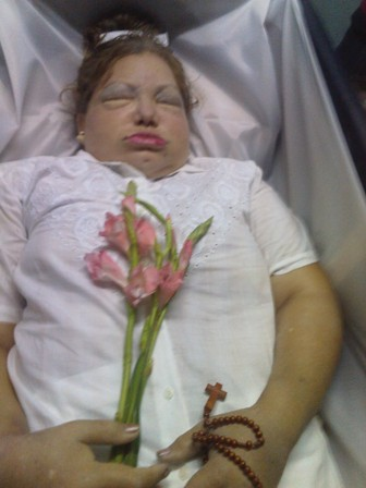 Ultima foto del cuerpo de Laura Pollán, tomada por el Rev. Ricardo Santiago Medina Salabarría