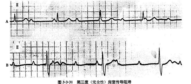 文件:第三度房室傳導阻滯.jpg - A+醫學百科