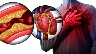 cuales-son-los-niveles-maximos-de-colesterol-consulta-los-datos-por-edades