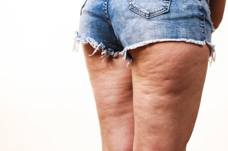 mujer-piernas-celulitis