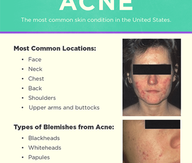 Acne Signs