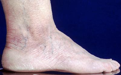 swollen-foot-ankle.jpg