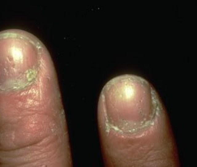 Psoriasis Nails Jpg