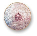 types-of-skin-cancer-basal-cell-carcinoma.jpg