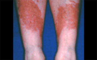 diabetes 12 warning signs that appear on your skin american academy of dermatology