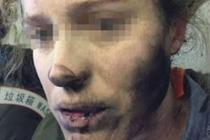 girl face and hand burnt during flight due to explosion in earphones
