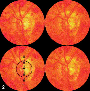 Cup-to-disc ratio intraocular pressure and primary open ...
