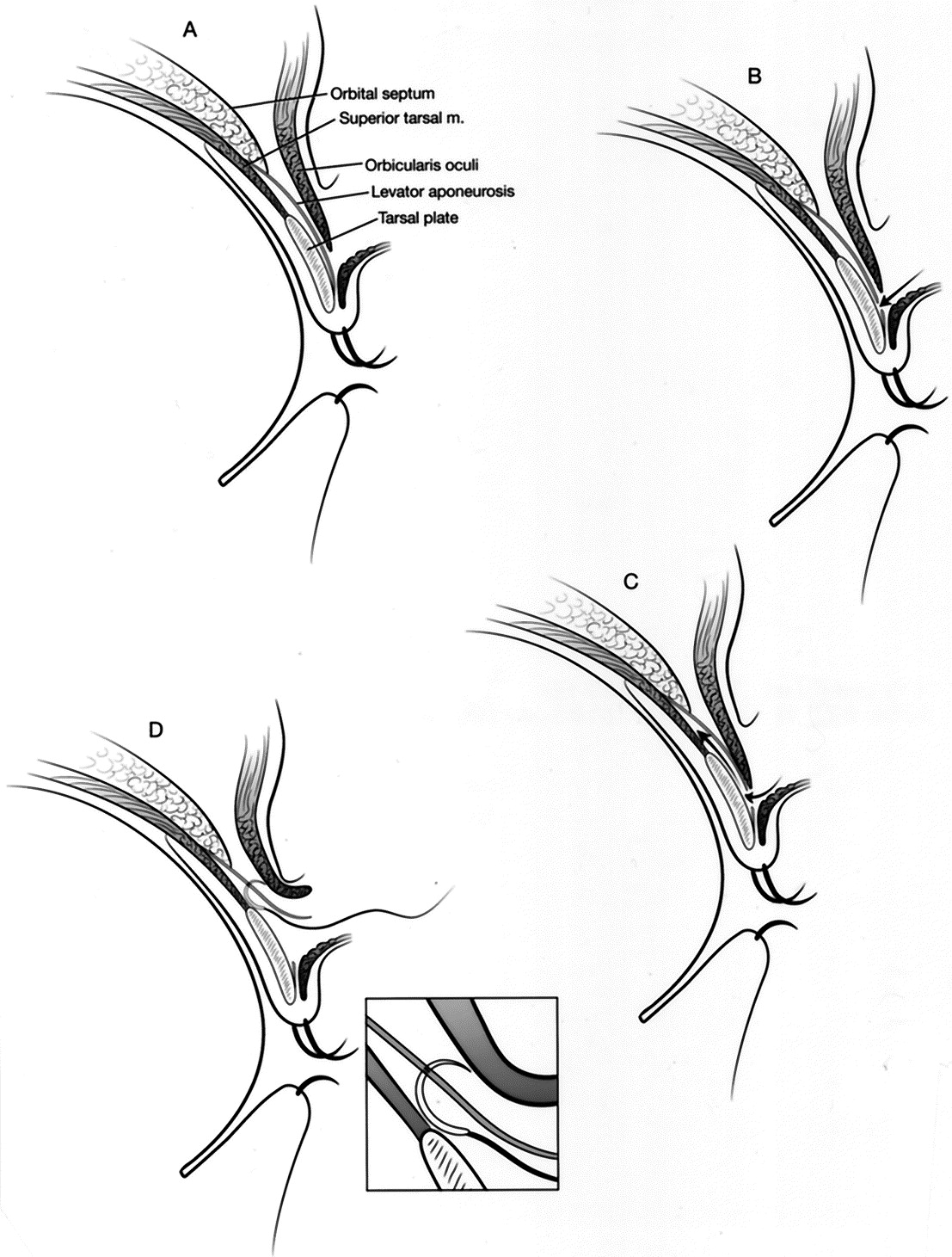 Efficacy and efficiency of a small-incision, minimal