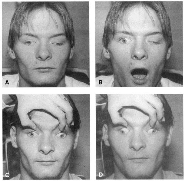 Hereditary external ophthalmoplegia synergistic ...