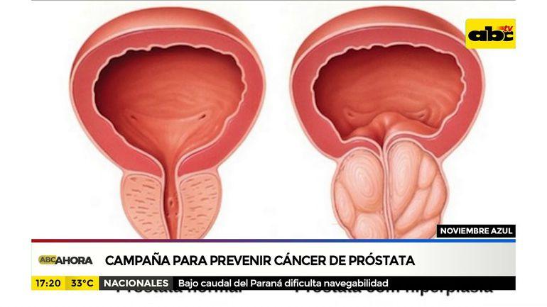 Noviembre azul para prevenir cáncer de próstata