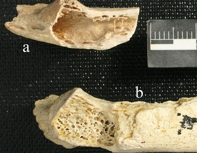 Los neandertales ya tenían cáncer de huesos hace más de 120.000 años