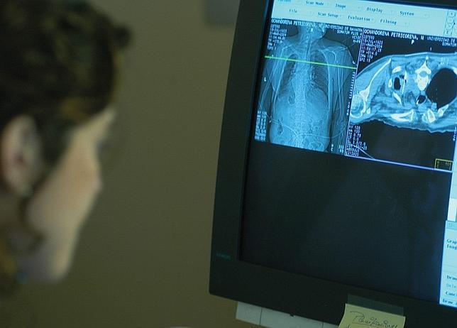 Un análisis de la respiración podría detectar precozmente el cáncer de pulmón