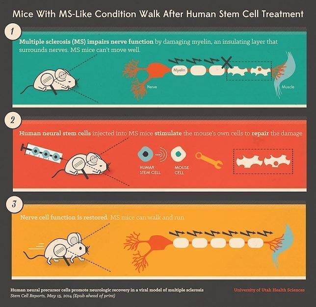 Una terapia celular logra que ratones con esclerosis múltiples puedan moverse