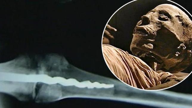 Una momia desvela que en el Antiguo Egipto ya se usaba cirugía «moderna»
