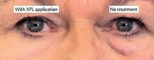 A la izquierda, un ojo tratado y recubierto con la piel de silicona que ha hecho desaparecer la bolsa y a la derecha el ojo con sus bolsas naturales, sin disimular