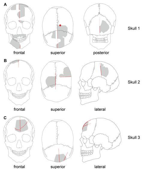 Gráfico de los cráneos. En rojo las modificaciones. En gris, los elementos preservados
