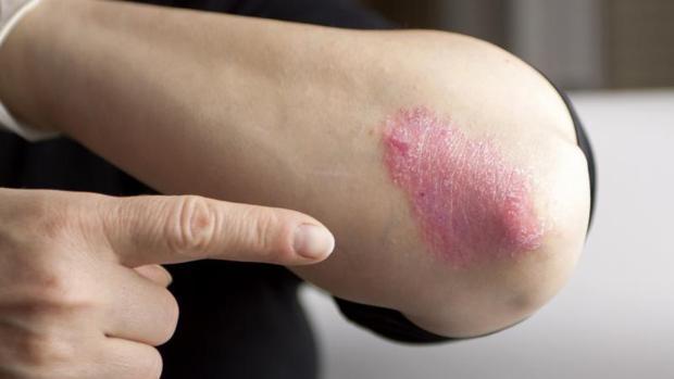 La psoriasis es una enfermedad inflamatoria, autoinmune y crónica de la piel
