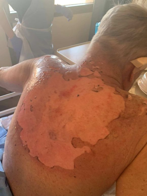 Man with a severely burnt back.
