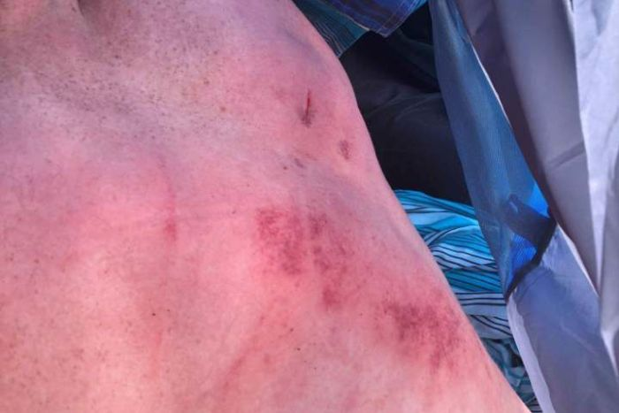 A man shows red marks and cuts on his back after beingrun over by a car at Falls Festival.