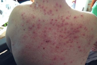 Spots and scabs on a man's back.