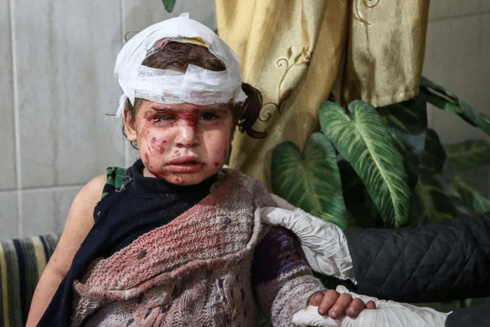 A young girl with bandages covering much of her scalp, one eye is swollen shut, cuts on her face, blood on her face and clothes