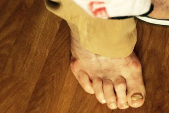 Daughter said father sobbed due to infected toe.