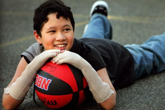 A young, smiling Terry Vo with arms bandaged, lies on a basketball court holding a basketball.