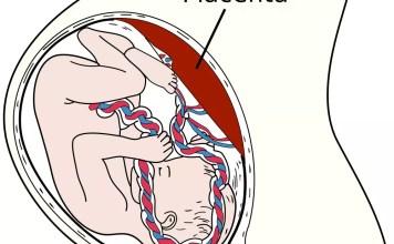 A placenta