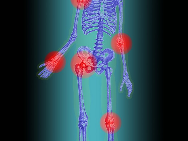 Artropatia gruppo di malattie reumatiche delle articolazioni di natura infiammatoria o