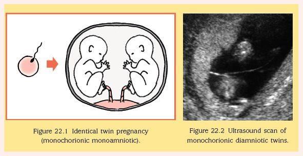 متى يظهر الحمل بتوأم في كيس واحد
