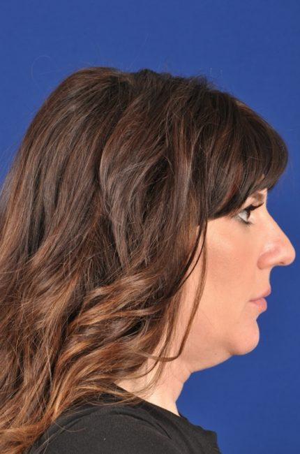 Does Kybella work