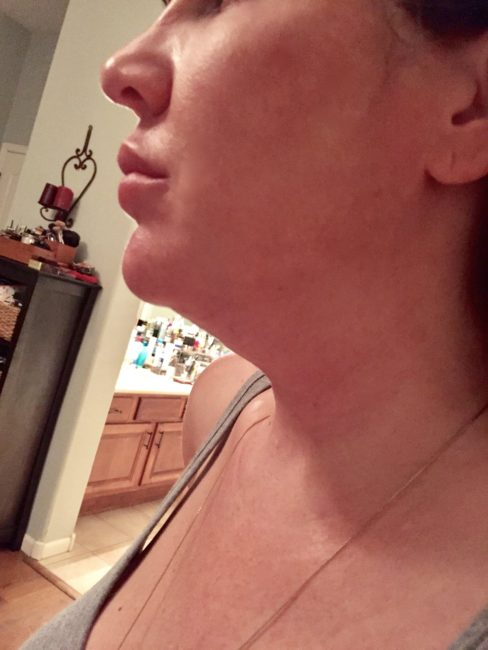 Kybella side effects swelling