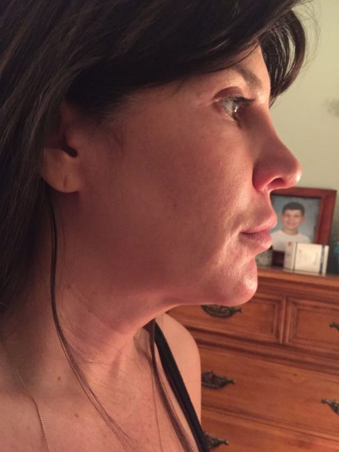 Kybella swelling and side effects