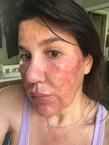 Swelling and side effects after Fractora RF