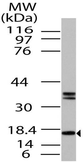 Anti-FABP7 Antibody| 11-10037
