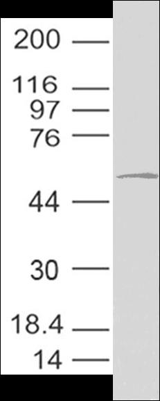 Coronavirus Nucleocapsid Antibody|11-2003|Coronavirus