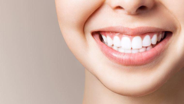 استخدام لصقات تبييض الأسنان