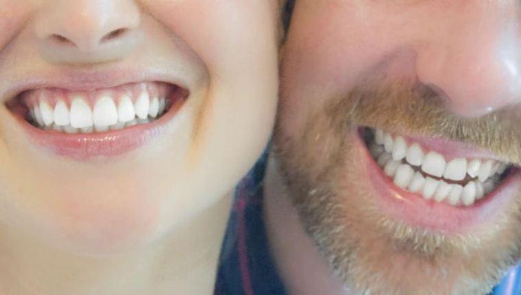 فوائد تبييض الأسنان
