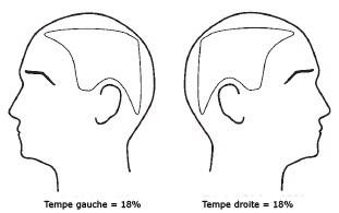 Pelade et traitement de la pelade | Dr Abimelec