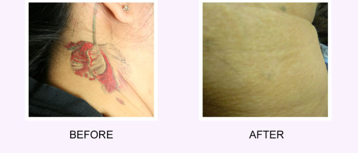 Big Tattoo Removal Cost
