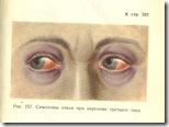 симптом очков пр и переломе. 1