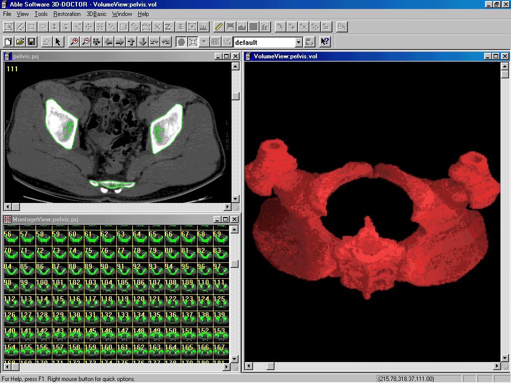 3D DOCTOR Medical Modeling 3D Medical Imaging Volume