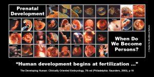"GAP Sign - ""Prenatal Development"""